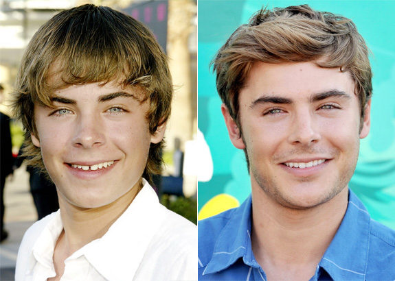 Zac Efron Before and After