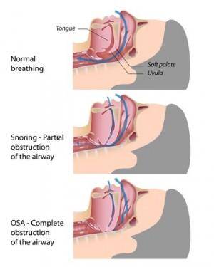 Obstructive Sleep Apnea (OSA) - OSA Explained