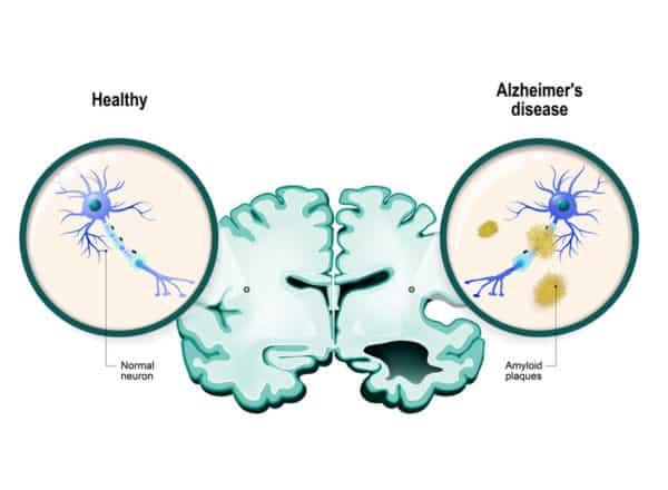 15 Important Questions and Answers About Dementia and Cognitive Impairment