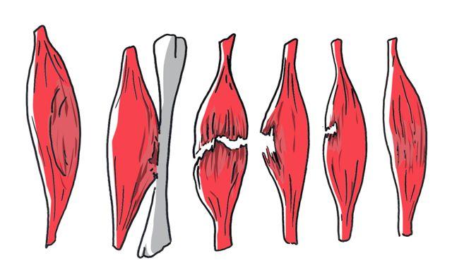 Dchirures Musculaires Rando Trek Montagne Symptmes
