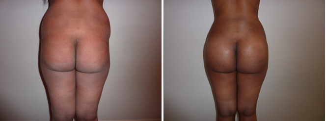 implant fesse et lipo hanches