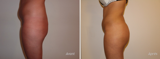 augmentation fessiers implants lipostructure contour postérieur