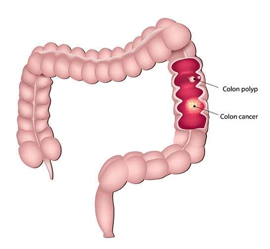Cancer / Pólipo colón recto
