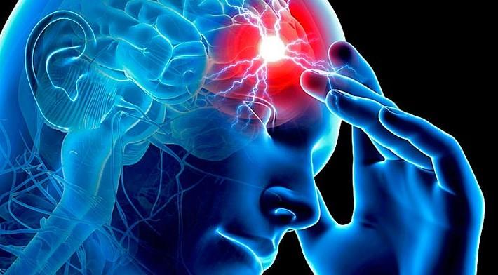 Resultado de imagen de ictus cerebral