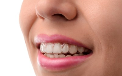 Teeth Whitening: Is it Right For You?