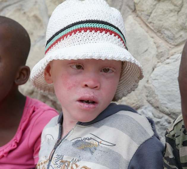 Important Things Everyone MUST Know About Albinism.