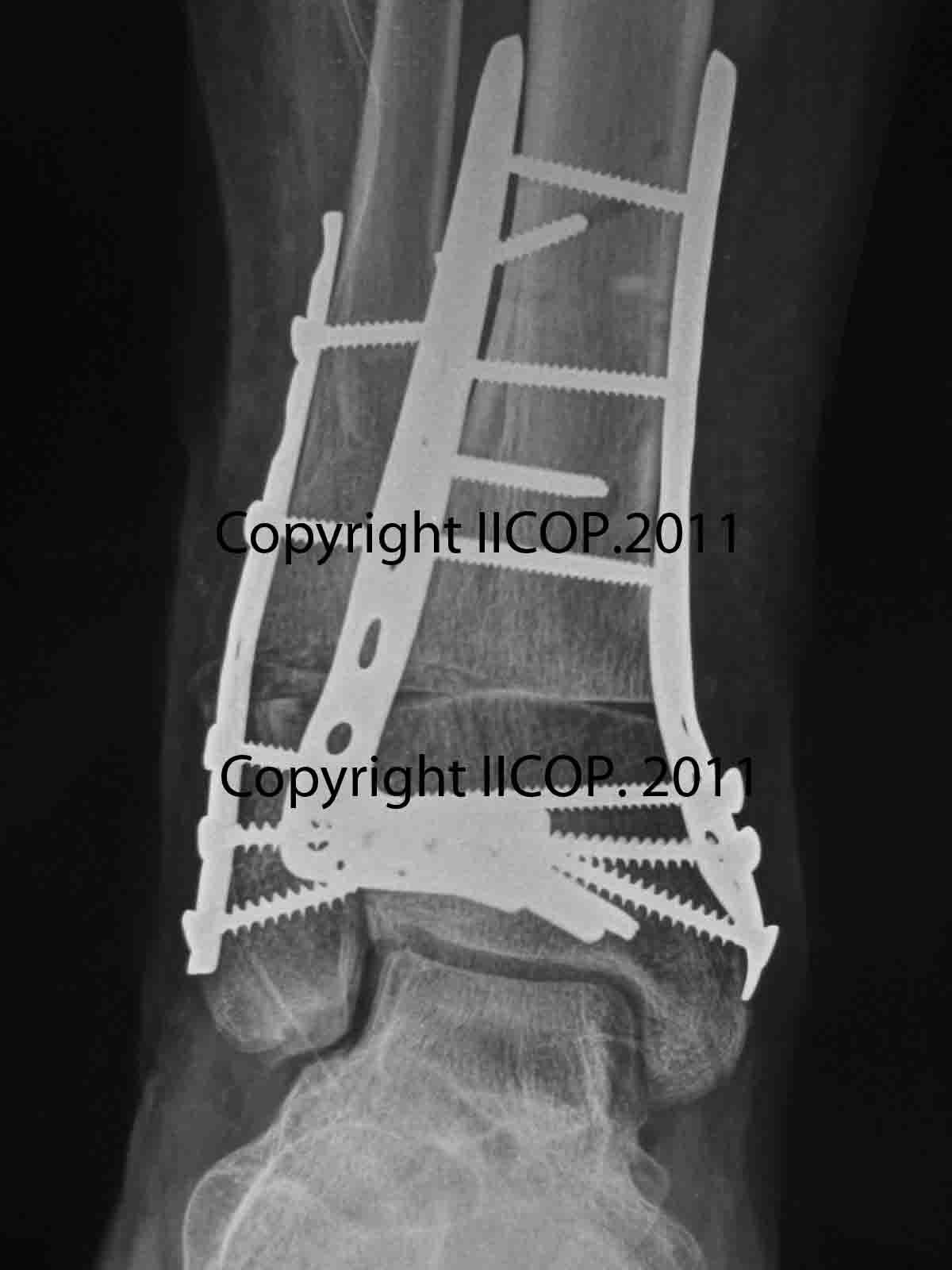 osteotoma de tibia distalosteotoma de tibia distal