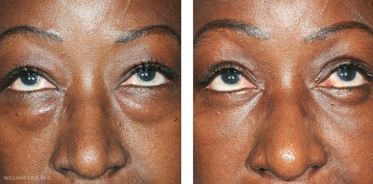 Eye Bag Removal New York City | Lower Eyelid ...