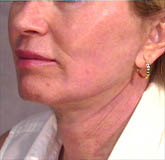 Post-Operation of a Caucasian Female with a Lip Augmentation Procedure