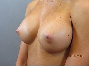 Breast Augmentation of a female ranging from thirty-six to forty years of age