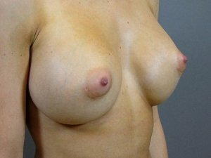 The photo is of a patient 31 - 35 years of age. She is a caucasian female. Procedure done was a breast augmentation. she went from a small B cup to a Full c or small D.  postoperative picture