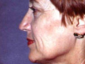 Caucasian Female Facelift