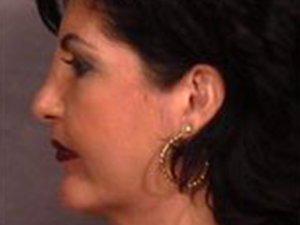 Patient #: 1767Gender: FemaleEthnicity: CaucasianAge: 41 - 50Procedure: Nose Reshaping