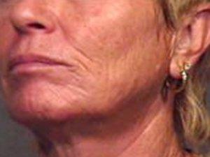 Patient #: 2039Gender: FemaleEthnicity: CaucasianAge: 51 - 65Procedure: Skin Resurfacing