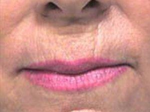Patient #: 2042Gender: FemaleEthnicity: CaucasianAge: 51 - 65Procedure: Skin Resurfacing