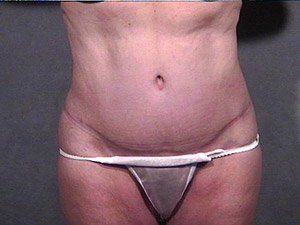 The photo shows the After photo of a patient that Dr. Jeffrey Ptak performed a standard abdominoplasty, or tummy tuck. Liposuction of the flank, hips, and abdomen, and inner thigh lift was also performed with ultrasonic VASER liposuction. The patient is a 41-50 year old caucasian female. The photo shows the front view.