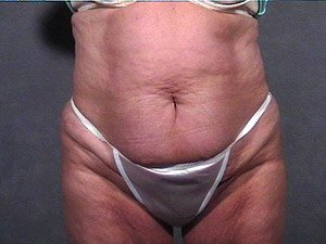 The photo shows the preoperative photo of a patient that Dr. Jeffrey Ptak performed a standard abdominoplasty, or tummy tuck. Liposuction of the flank, hips, and abdomen, and inner thigh lift was also performed with ultrasonic VASER liposuction. The patient is a 41-50 year old caucasian female. The photo shows the front view.