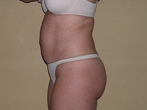 The photo shows the preoperative photo of a patient that Dr. Jeffrey Ptak performed a standard abdominoplasty, or tummy tuck. Liposuction of the flanks was also performed with ultrasonic VASER liposuction. The patient is a 36-40 year old caucasian female. The photo shows the side view. This patient has had multiple pregnancies in the past.