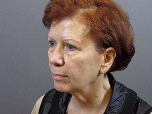 Caucasian Female Brow Lift