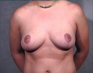The Procedure performed was Breast Reduction, or Reduction Mammaplasty. Mastopexy is also performed in this procedure. The patient is a 41-50 year old caucasian female. Procedure performed by Dr. Jeffrey J. Ptak, MD, FACS. Front view. After Photo.