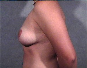 The Procedure performed was Breast Reduction, or Reduction Mammaplasty. Mastopexy is also performed in this procedure. The patient is a 41-50 year old caucasian female. Procedure performed by Dr. Jeffrey J. Ptak, MD, FACS. Side view. After Photo.