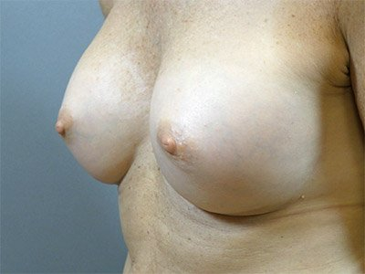 breast_patient01_after01