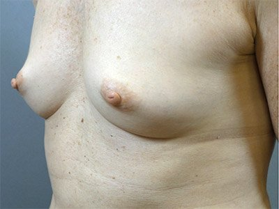breast_patient01_before01