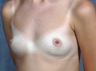 breast_patient03_before01