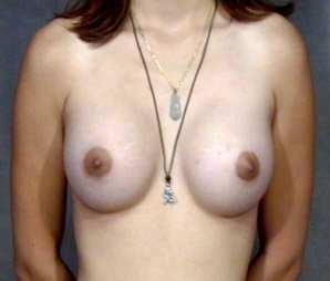 breast_patient05_after01