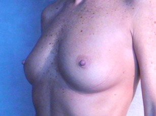 The procedure performed was a primary breast augmentation with silicone breast implants. The patient shown is a caucasian female, age 31-35. Before photo, oblique view. By Dr. Jeffrey Ptak. Patient went from Full B Cup breast size to D/DD Cup Bra.