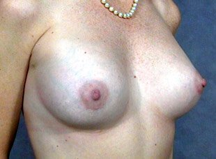 The procedure performed was a primary breast augmentation with silicone breast implants. The patient shown is a caucasian female, age 31-35. Postoperative photo, oblique view. By Dr. Jeffrey Ptak. Patient went from A/B Cup breast size to C/D Cup Bra.