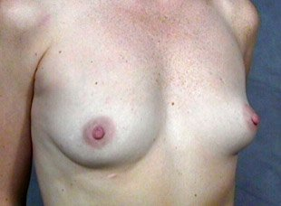 The procedure performed was a primary breast augmentation with silicone breast implants. The patient shown is a caucasian female, age 31-35. Before photo, oblique view. By Dr. Jeffrey Ptak. Patient went from A/B Cup breast size to C/D Cup Bra.