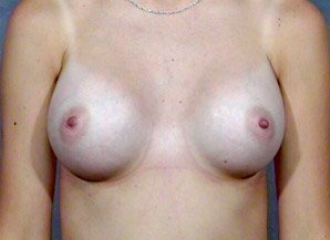 The procedure performed was a primary breast augmentation with silicone breast implants. The patient shown is a caucasian female, age 31-35. After photo. By Dr. Jeffrey Ptak. Patient went from A/B Cup breast size to C/D Cup Bra.