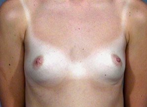 The procedure performed was a primary breast augmentation with silicone breast implants. The patient shown is a caucasian female, age 31-35. Before photo. By Dr. Jeffrey Ptak. Patient went from A/B Cup breast size to C/D Cup Bra.