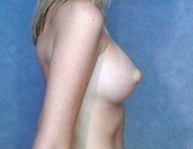 The patient shown is a caucasian female, age 26-30. The procedure performed was a primary breast augmentation with silicone breast implants. After photo, Side view