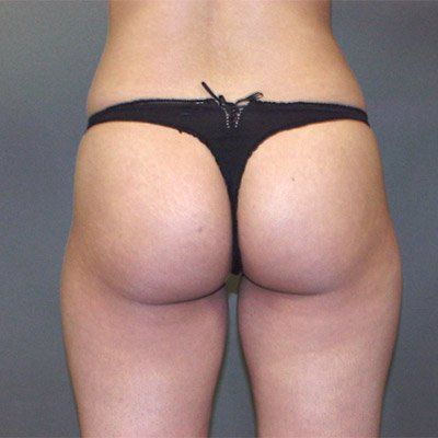 The patient is a 31-35 year old caucasian female. The procedure performed was ultrasonic laser liposuction to the inner and outer thighs, hips, saddlebags to thin out the fat layer. The performing surgeon was Dr. Jeffrey Ptak. Before Photo, Posterior View