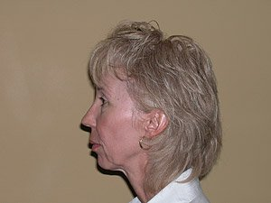 endomidfacelift-fat-grafting-chin-implant-platysmaplasty-1