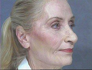 full-face-co2-laser-post1