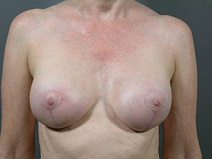 The patient seen is a 41-50 year old caucasian female. The procedure performed was a Breast Implant Exchange with full Mastopexy (Breast Lift) for better implant and nipple position. Performed by Dr. Jeffrey J. Ptak, MD, FACS. After Photo, Front View.