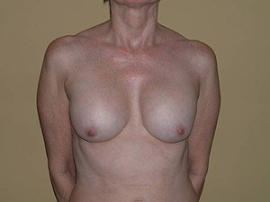 The patient seen is a 41-50 year old caucasian female. The procedure performed was a Breast Implant Exchange with full Mastopexy (Breast Lift) for better implant and nipple position. Performed by Dr. Jeffrey J. Ptak, MD, FACS. Before Photo, Front View.