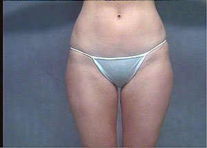 Procedure performed by board certified plastic surgeon Dr. Jeffrey Ptak, MD. Procedure was ultrasonic VASER liposuction to the abdomen, inner, outer thighs, and circumferential thighs to help contour the patient's waistline and legs. The patient is a 31-35 year old caucasian female. Anterior view, After photo. postoperative
