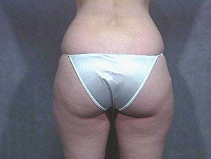 The patient is a 36-40 year old caucasian female. The procedure performed was ultrasonic laser liposuction to the inner and outer thighs, hips, saddlebags, banana roll, to thin out the fat layer. The performing surgeon was Dr. Jeffrey Ptak. Before Photo, Posterior View