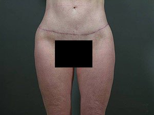 This patient is a 40 - 51 year old, caucasian female. 360 abdominoplasty, tummy tuck where the incision was continued the entire way around the body to incorporate a body lift. Scar right on the thong line. Incidental liposuction. front view. post operative