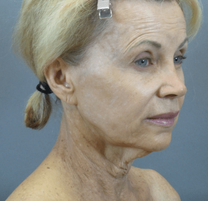 Patient #: 2937Gender: FemaleEthnicity: CaucasianAge: 51 - 65Procedure: Non-Surgical Facelift