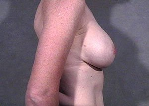 This patient is a 41-50 year old caucasian female. Procedure performed by board certified plastic surgeon, Dr. Jeffrey Ptak, was a primary breast augmentation with saline implants under the muscle. Subpectoral implants. After lateral side view photo
