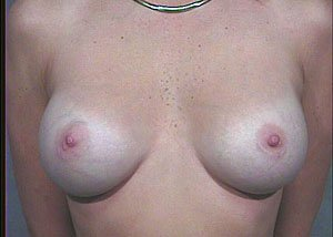 subpectoral-breast-augmentation-saline-implants11
