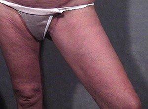 thigh-lift-post1