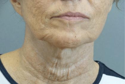 Patient #: 2629Gender: FemaleEthnicity: CaucasianAge: 51 - 65Procedure: ThermiTight