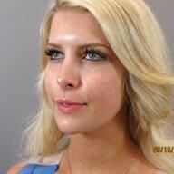 Patient #: 2626Gender: FemaleEthnicity: CaucasianAge: 26 - 30Procedure: Nose Reshaping