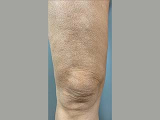 After photo of RF Skin Tightening ThermiTight procedure for Caucasian Female between the age of 45 - 60.